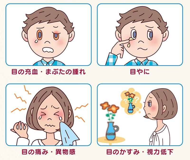 画像:結膜炎の症状