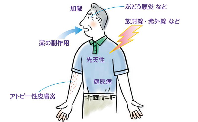 画像:白内障の原因