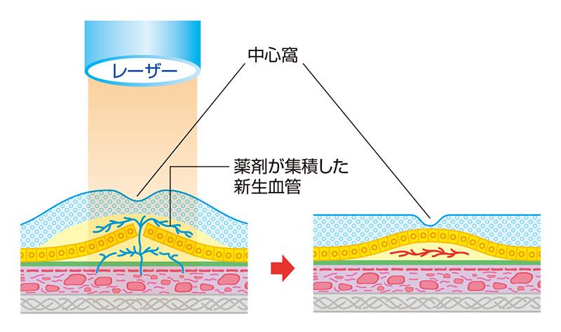 画像:光線力学的療法(PDT)
