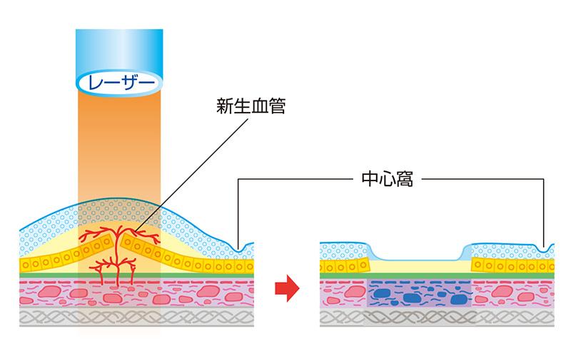 画像:レーザー光凝固術
