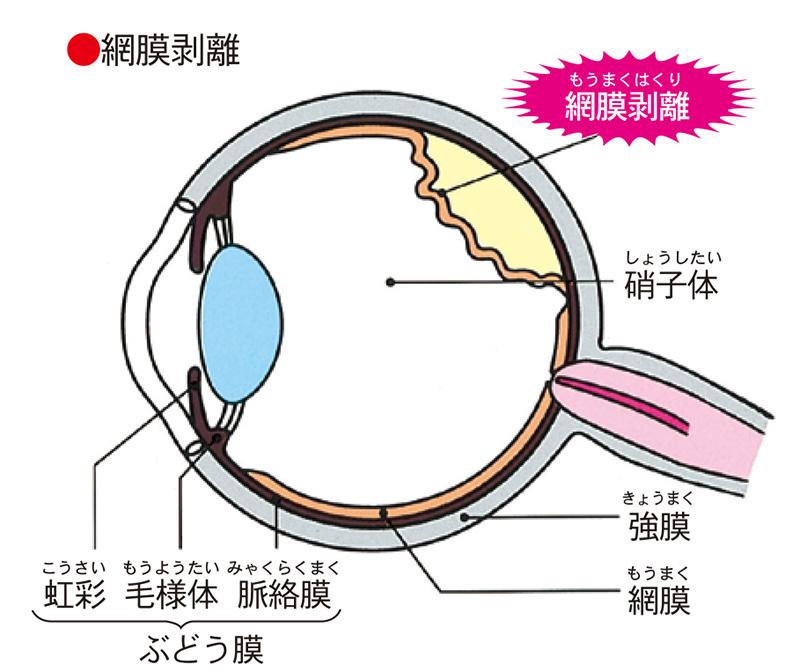 画像:網膜裂孔・網膜剥